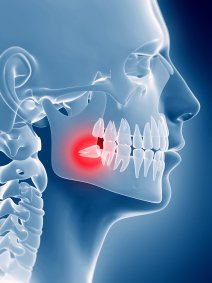 3d rendered illustration of an impacted wisdom tooth
