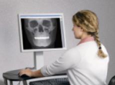 3D-Röntgen zeigt Erfolg der Wurzelbehandlung