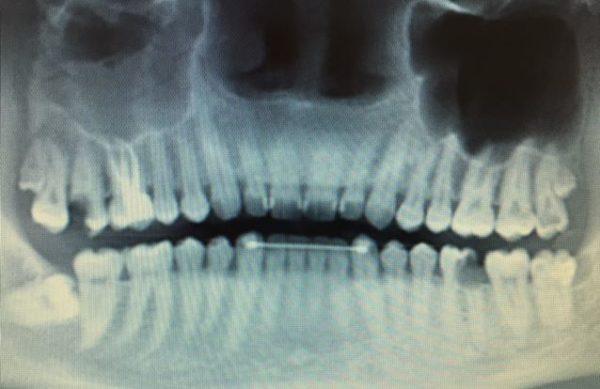 Röntgenbild von Gebiss - Oralchirurgie.