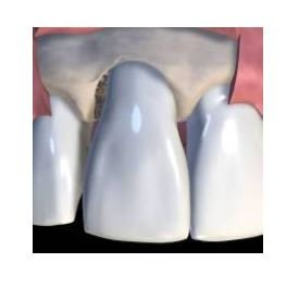 Paradontologie, Parodontosebehandlung